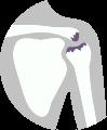 Liečba bolesti ramena - osteoartróza