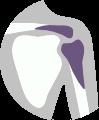 Liečba bolesti ramena - vykĺbenia, zlomeniny